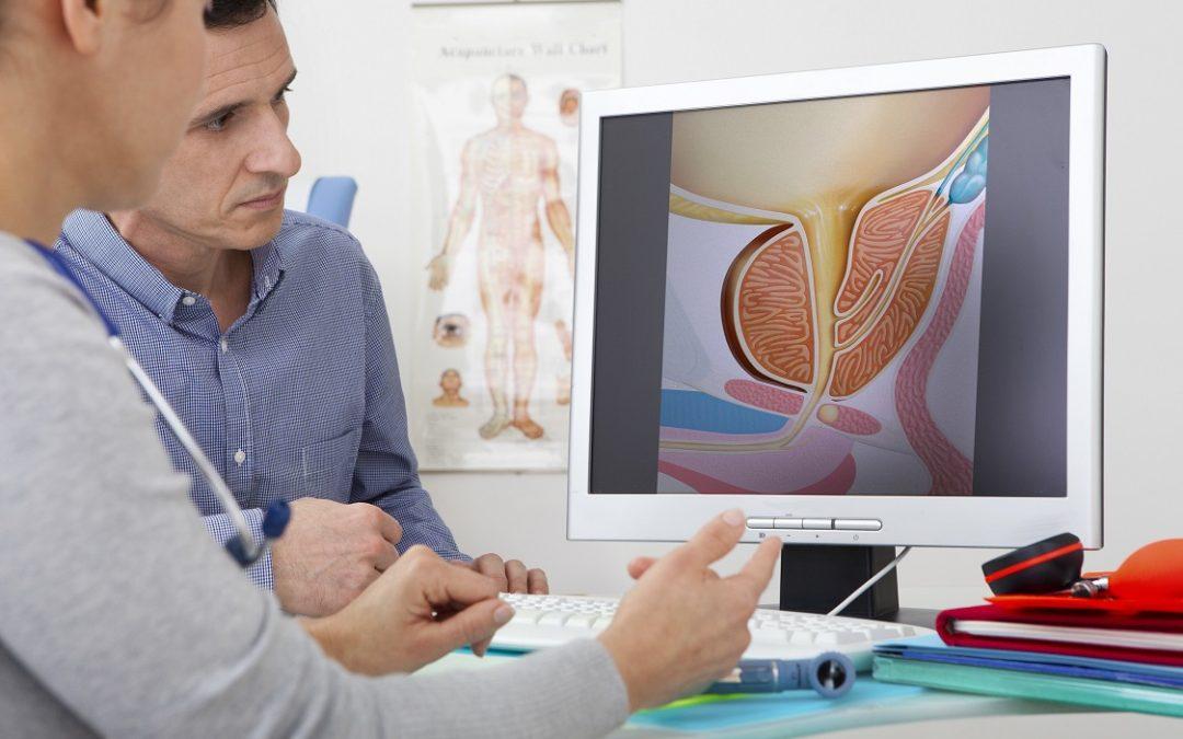 Prevencia karcinómu prostaty – primárna prevencia